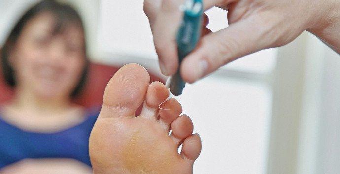 clinica de pie diabético en San Luis Potosí