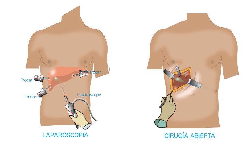 operacion de vesicula en san luis potosi