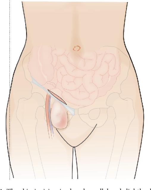 Cirugía de hernia femoral en San Luis Potosí